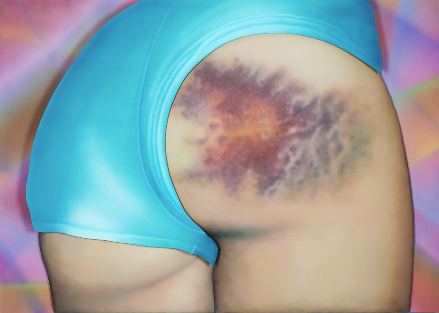 I-Got-a-Really-Beautiful-Bruise-small1__880