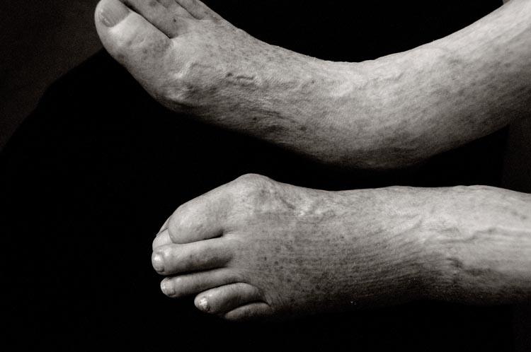 FeetM