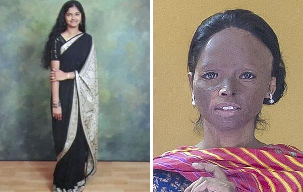 acid-attack-survivor-laxmi-fashion-model-india-22