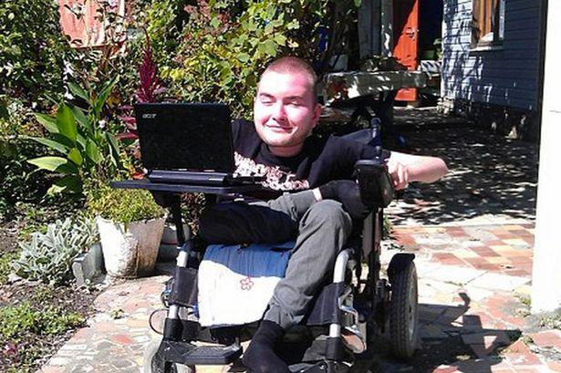 PAY-Russian-head-transplant-volunteer-Valery-Spiridonov