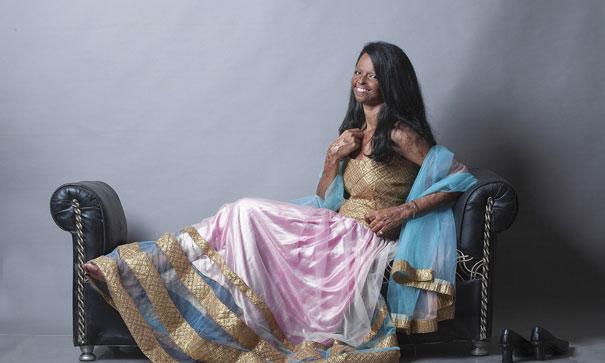 acid-attack-survivor-laxmi-fashion-model-india-17
