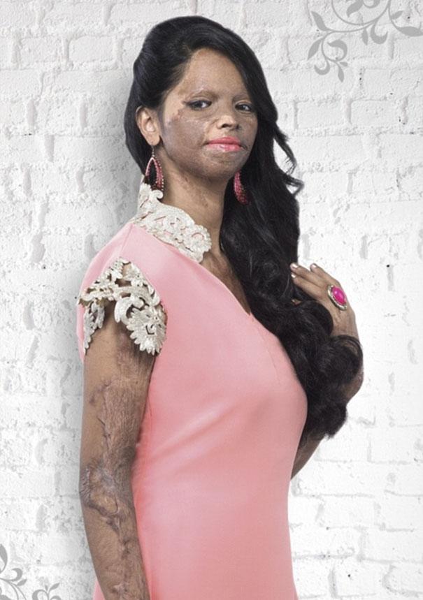 acid-attack-survivor-laxmi-fashion-model-india-20