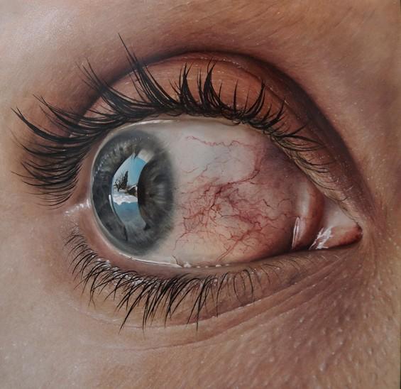 hyperaemia-565x548